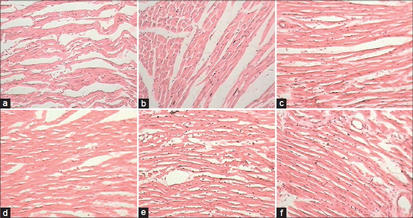 Figure 1: Microscopic section of (a) ischemia-reperfusion injury control – (1) Myocardial edema, (2) separation of fibers, (3) loss of striation, (4) diffuse inflammation (5) necrosis. (b) Hydrochlorothiazide (HCTZ) treated – (1) Myocardial edema, (2) separation of fi bers, (3) loss of striation. (c) Green tea extract-100 (GTE)-100 – (1) Myocardial edema, (2) separation of fibers, (3) loss of striation. (d) GTE-500 – (1) Myocardial edema, (2) separation of fi bers. (e) GTE-100 + HCTZ – (1) Myocardial edema, (2) separation of fi bers, (3) loss of striation. (f) GTE-500 + HCTZ – (1) Myocardial edema, (2) separation of fi bers, (3) loss of striation (H and E, ×400)