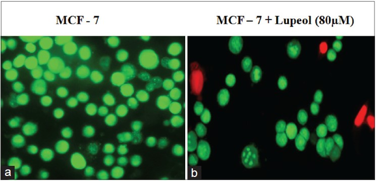 Figure 4: Lupeol induced cell death of MCF-7 cells. Fluorescent microscopic image of AO/EtBr staining of the MCF-7 cells. (a) Control - viable cells shows green stained nuclei. (b) 20 ìM compound treated MCF-7 cells shows red dead cells