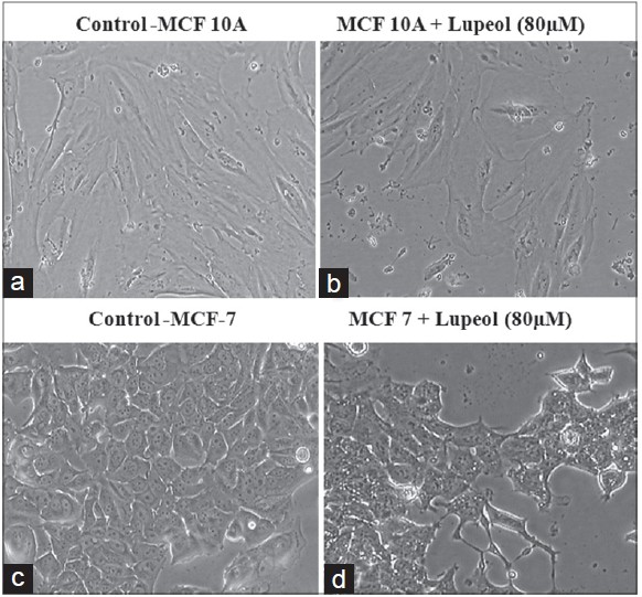 Figure 5: Effect of lupeol on cell morphology in MCF-7 and MCF- 10A cells. (a) Control MCF-10A cells. (b) Normal cells treated with lupeol (80 ìM). (c) Control MCF-7 cells (d) Lupeol treated MCF-7 cells