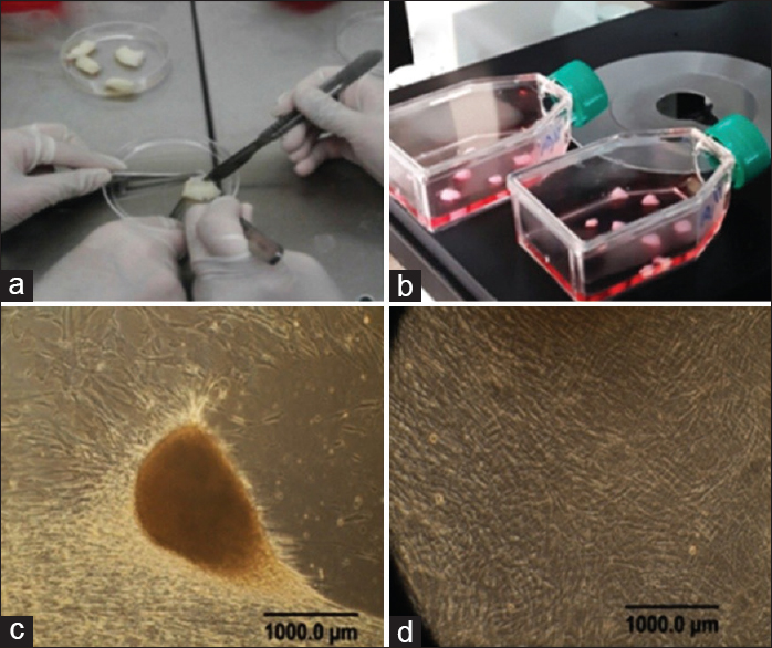 Figure 1: Isolation and culture of MSCs. (a) The umbilical cord, (b) Wharton's jelly cut into 2–5 mm explants, (c) after 7–14 days, hUCMSCs were grown from the explants, and (d) MSCs after two passages